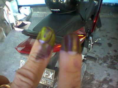 Yang kiri jari saya, yang kanan jari istri saya.. hahaha